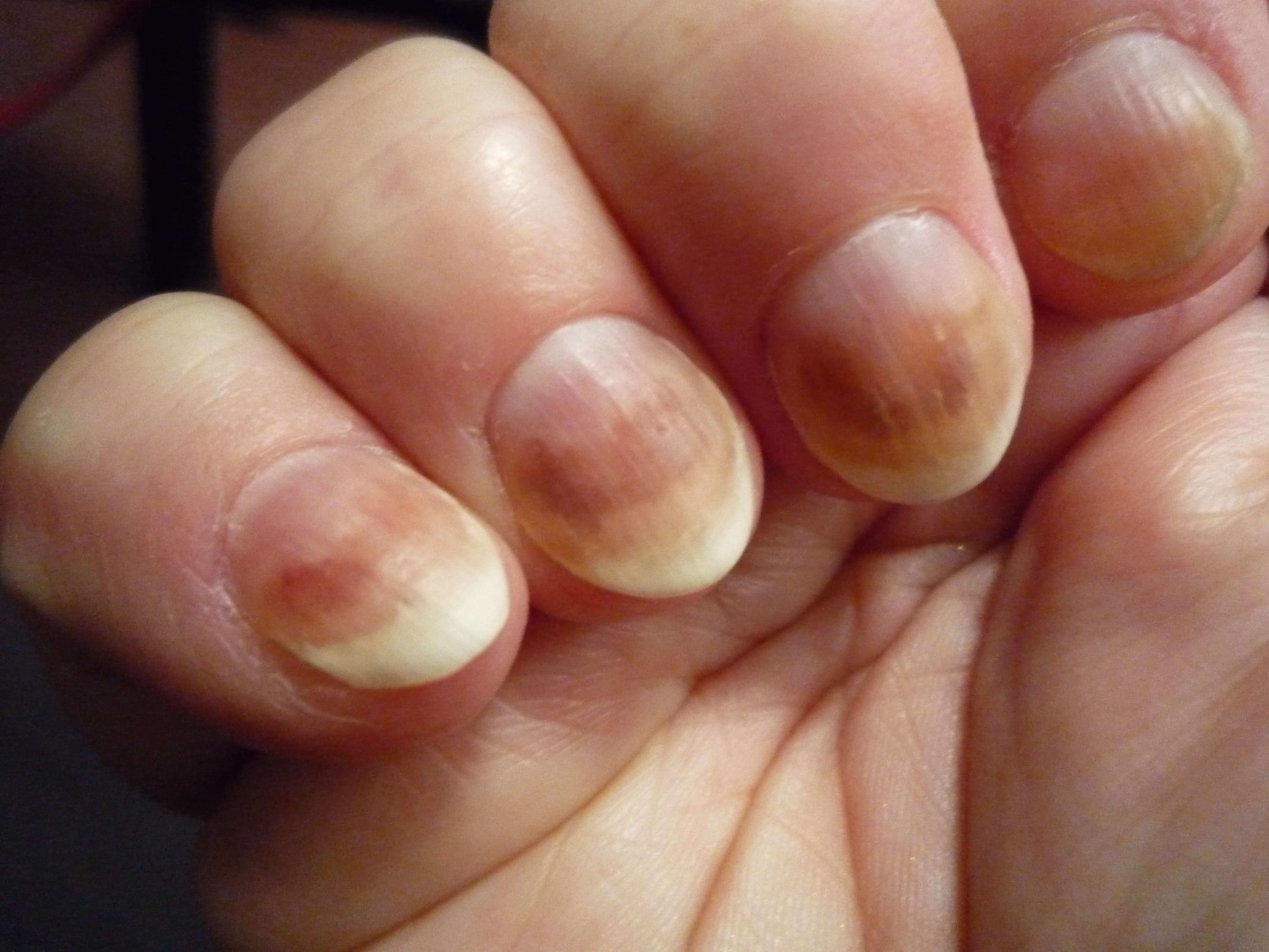 Could your nail varnish cause you cancer